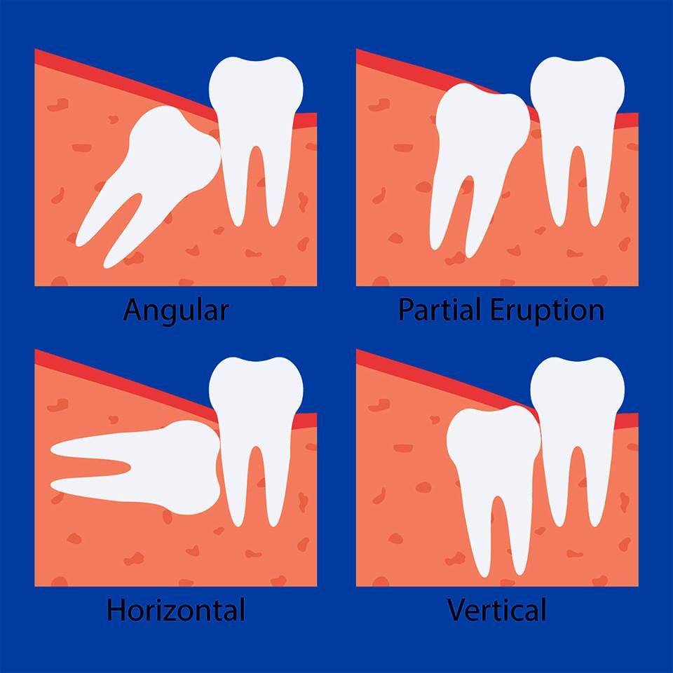 Wisdom Tooth Extraction Singapore B F Dental Clinic Singapore
